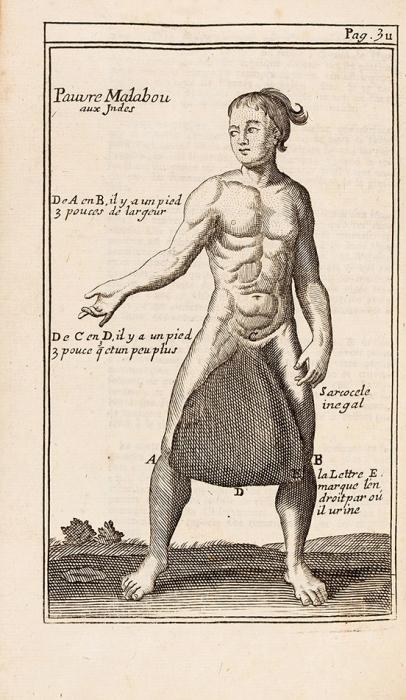 [Более 70гравюр] Диони, П.Курс хирургических операций, продемонстрированных вкоролевском саду. [Cours d'opérations dechirurgie, démontrées aujardin-royal. Нафр.яз.]. Париж: Chez d'Houry, 1751.